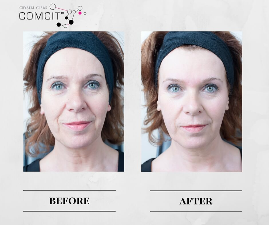 COMCIT Frozen Facial