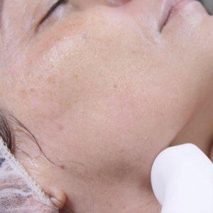 Scar Polishing For Stretch Marks & Acne
